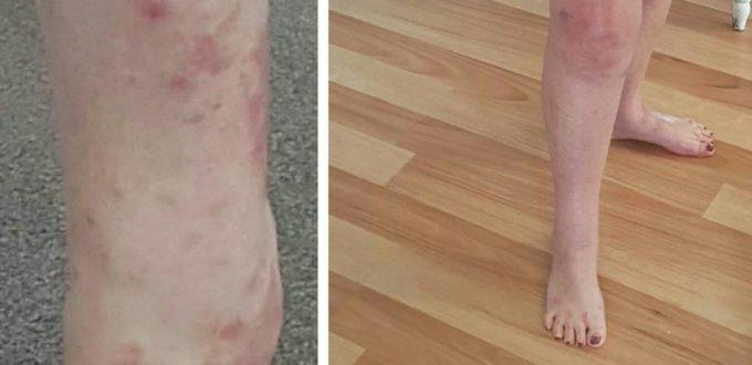 salicylate allergy - salicylates skin treatments
